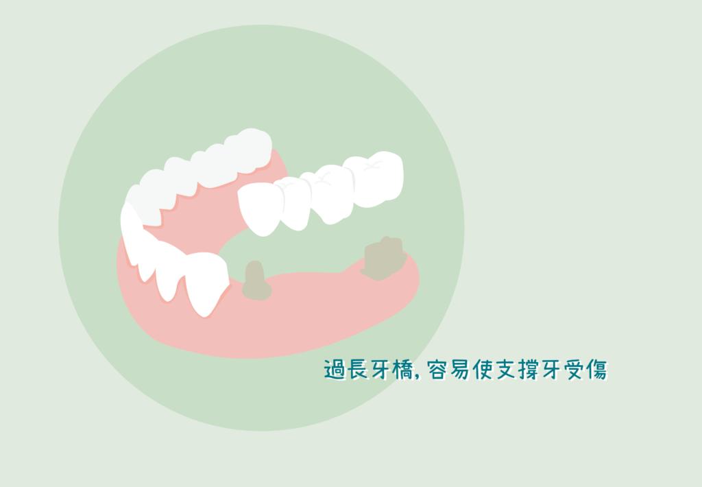 蛀牙 缺牙 裝牙橋