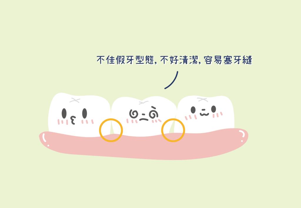 不佳假牙型態不好清潔