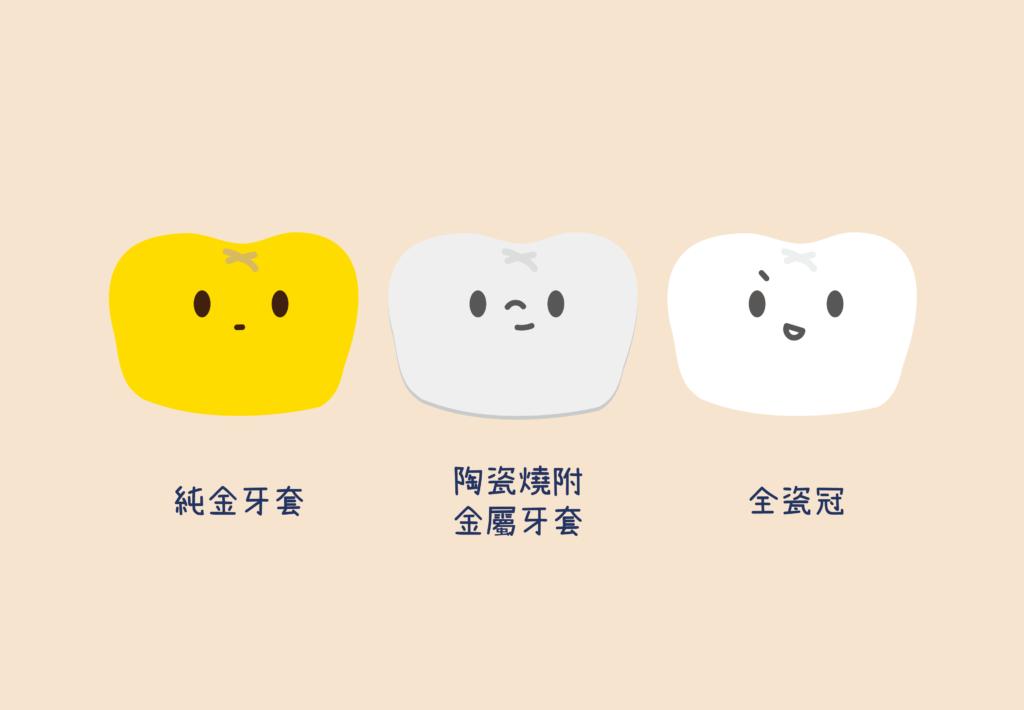 三種牙套材質