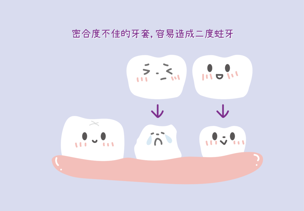 密合度不佳的牙套容易造成二度蛀牙