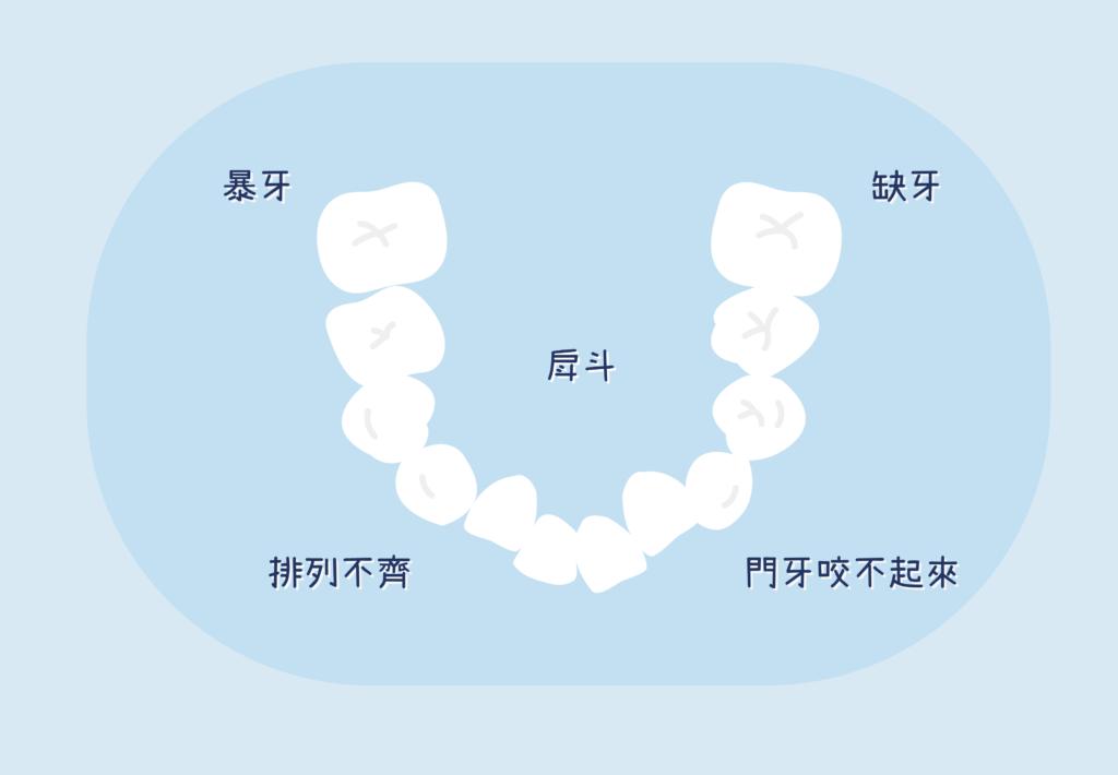 暴牙戽斗缺牙都需要牙齒矯正