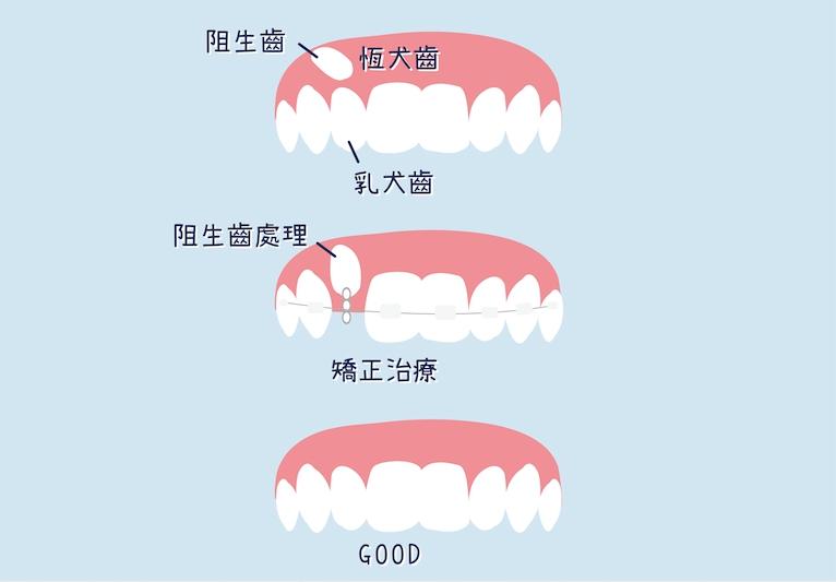 阻生乳犬齒用牙齒矯正拉下來