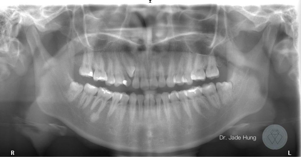 乳犬齒阻生齒X光
