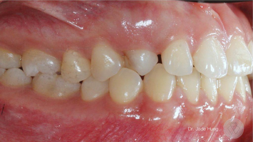 乳犬齒阻生齒