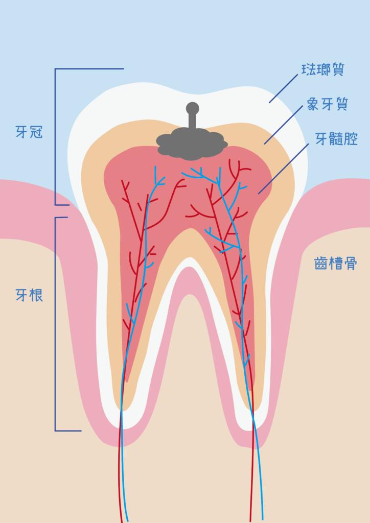 蛀牙的牙齒構造剖面圖