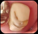 補牙 玻璃離子體