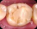 補牙 複合樹脂