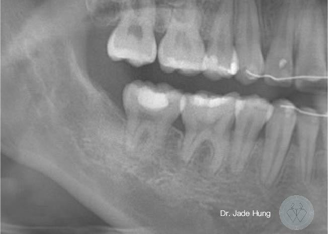 牙齒校正後的X光片