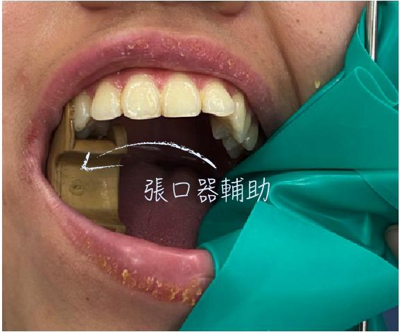 一個塑膠東西卡在口腔撐著做根管治療