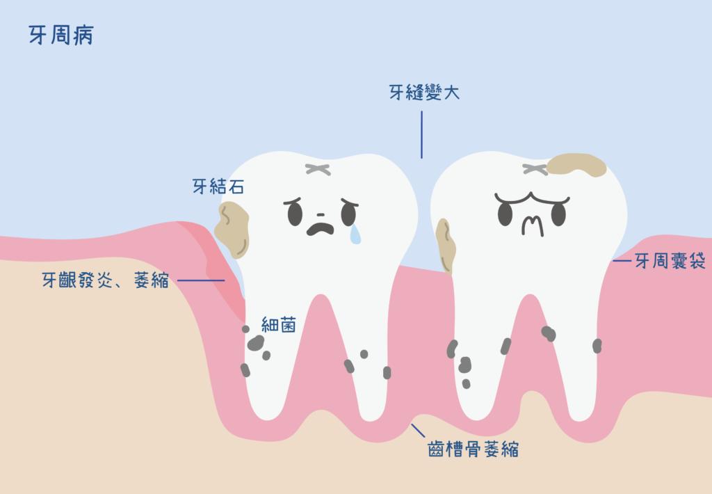 兩顆牙齒呈現的常見牙周病症狀