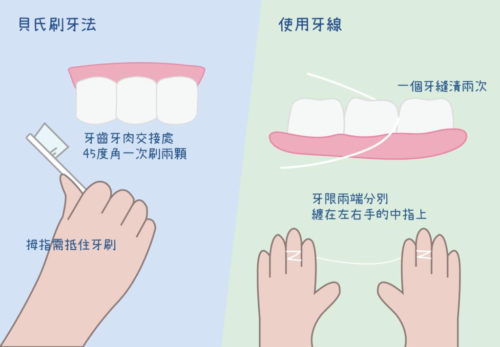 用貝氏刷牙法和牙線清潔口腔