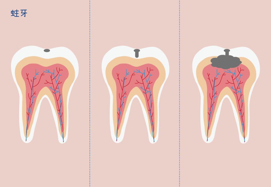 三顆牙齒代表不同的蛀牙過程
