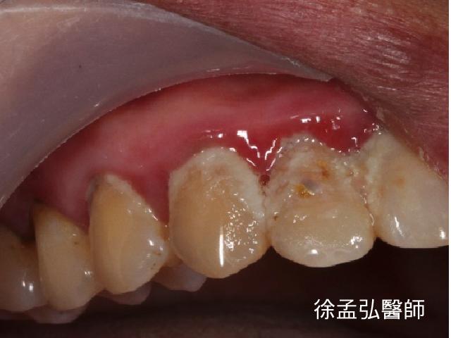 上排牙齒牙齦發炎