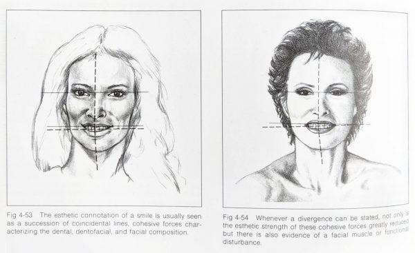 兩個人臉上畫線是微笑設計參考線