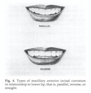 下唇與牙齒切端近似平行的美麗弧線