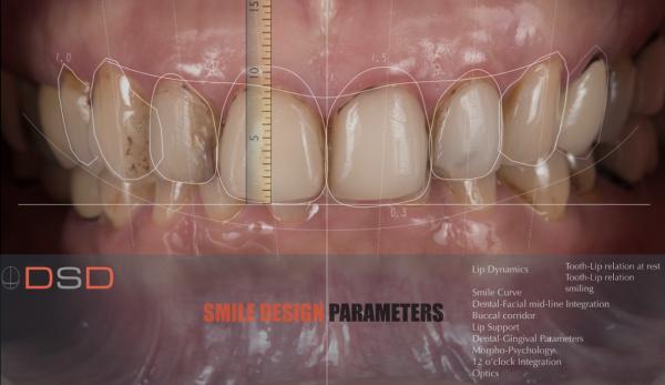 DSD數位微笑設計電腦檔案繪圖