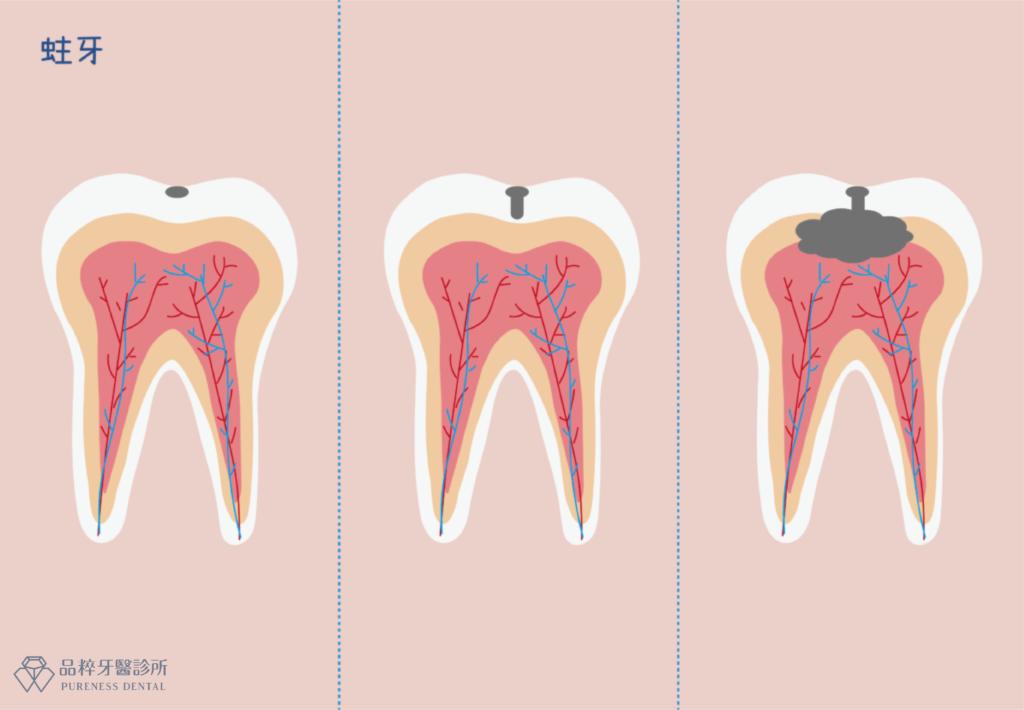 蛀牙隨時間變化更嚴重的進程圖