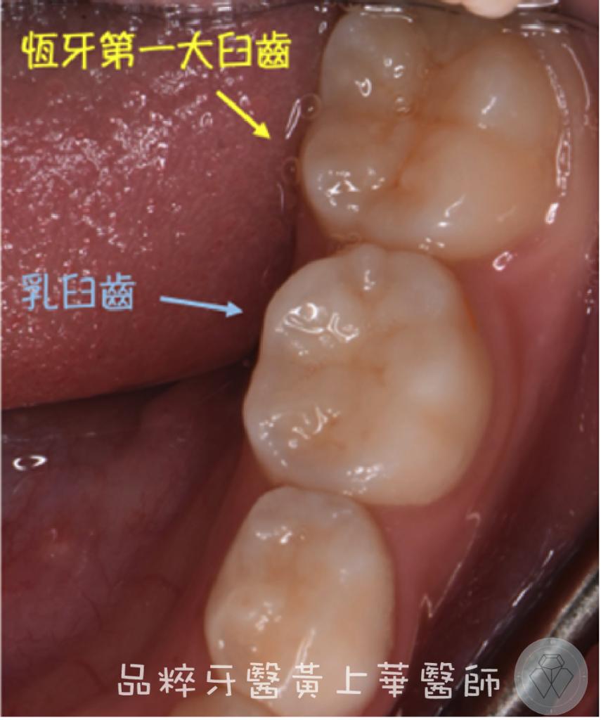 下顎第一大臼齒在大臼齒後方