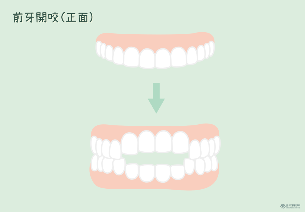 前牙開咬正面