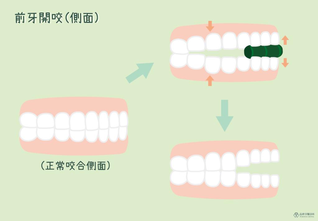 前牙開咬側面
