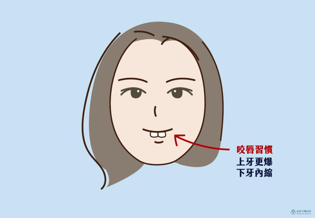 一個人的臉上有兩顆門牙