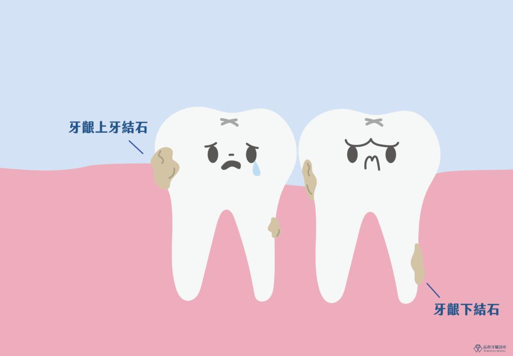 兩顆牙齒的牙齦裡有牙結石