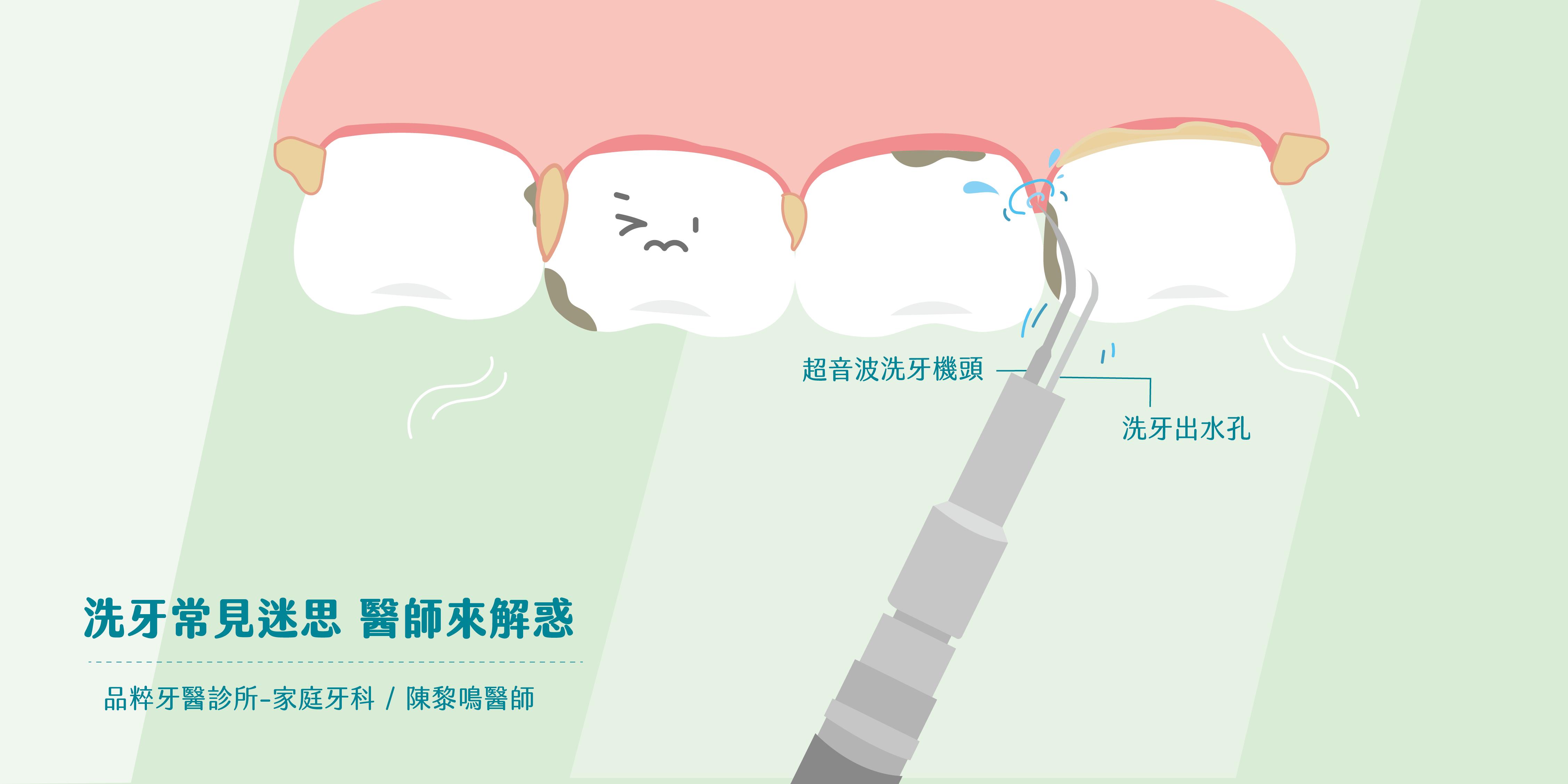 超音波洗牙機頭正在沖洗一排牙齒