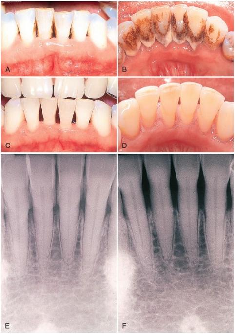 洗牙步驟的課本圖片