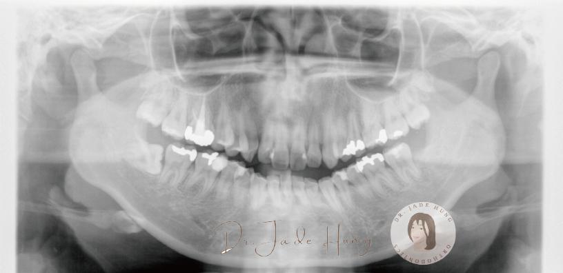 暴牙術前X光