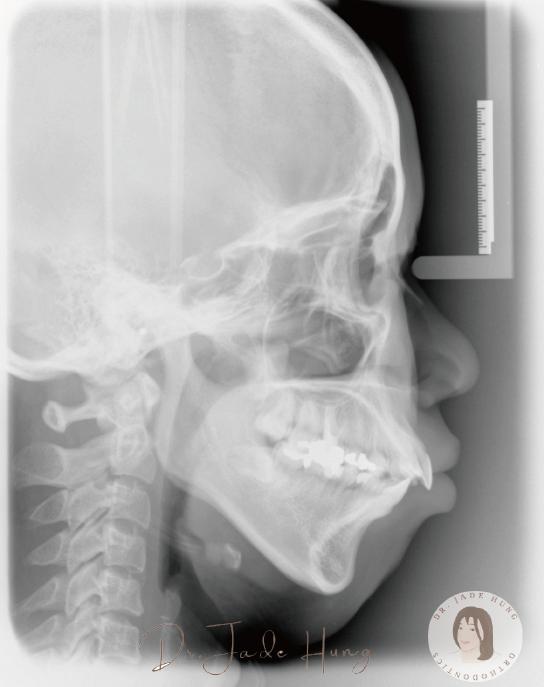 術後側顱X光片