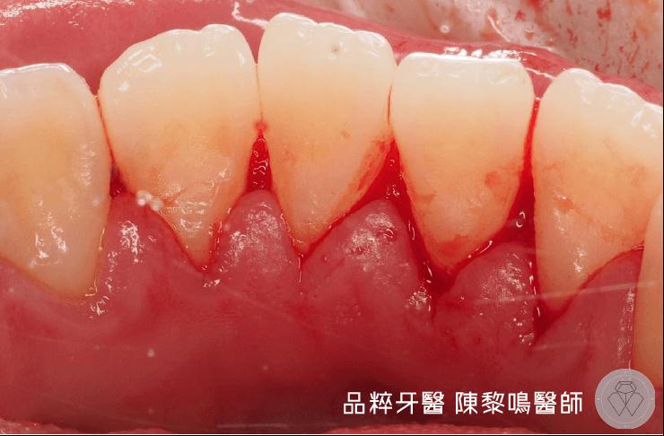 洗牙後牙齦上的血