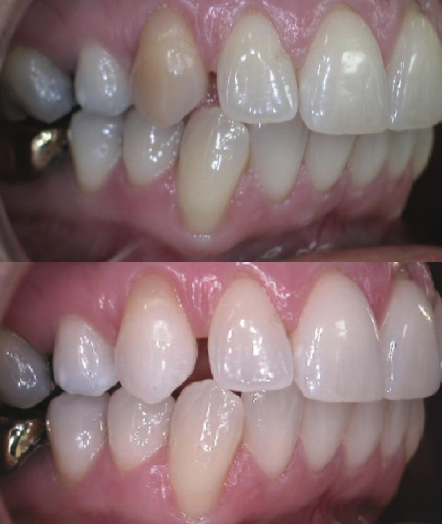 根管治療牙醫課本圖片