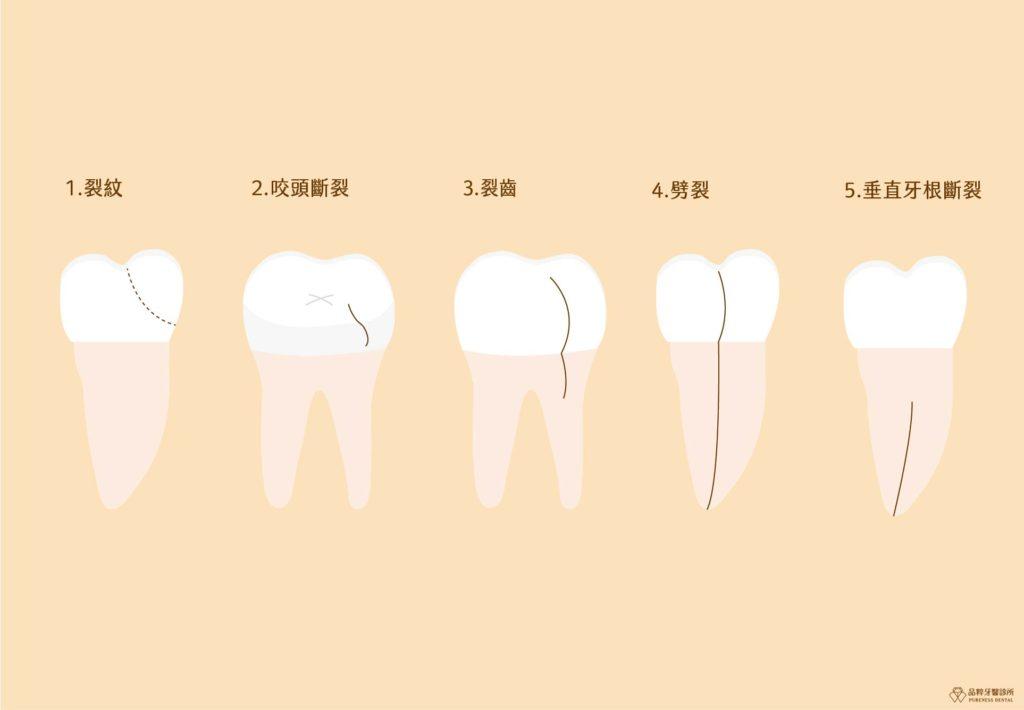 五種齒列型態