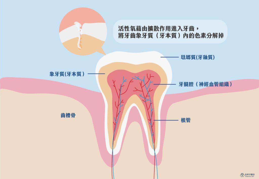 美白藥劑與牙齒上的毛細孔