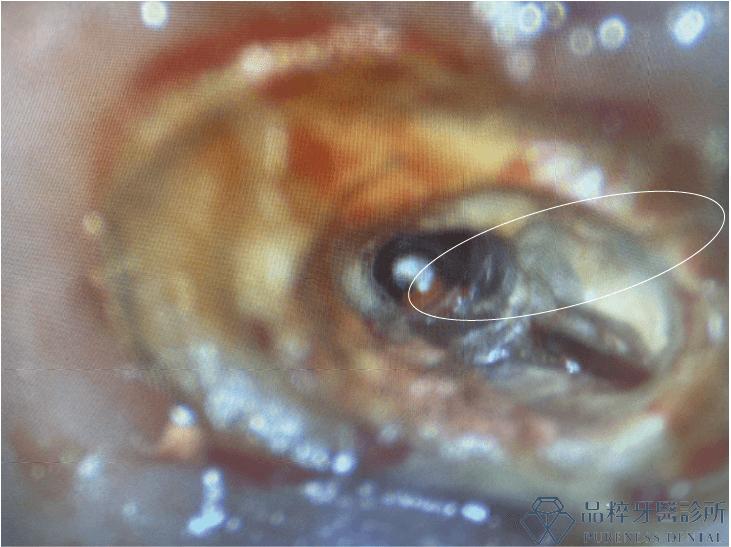 顯微鏡下牙的牙根根管照片