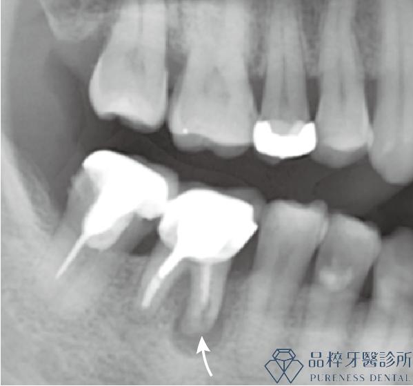 根尖切除術X光