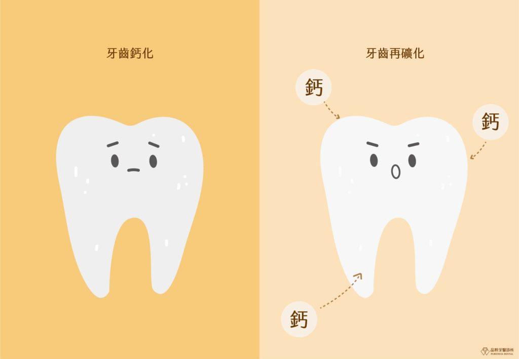 牙齒脫礦與再礦化的對比