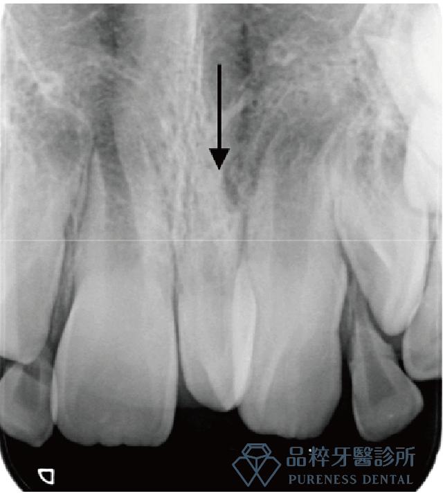 X光片照出兩顆牙齒的多生牙