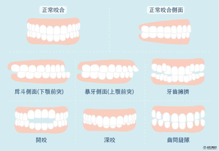 正常咬合與暴牙戽斗深咬開咬的差異對比