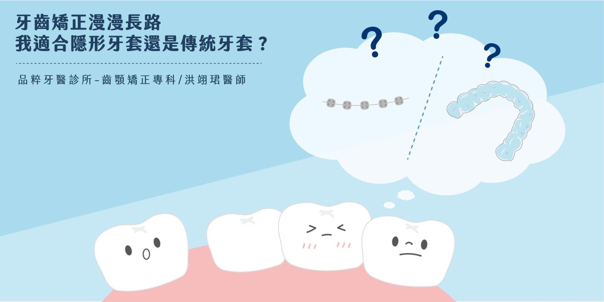 品粹牙醫金屬矯正與隱形矯正優缺比較
