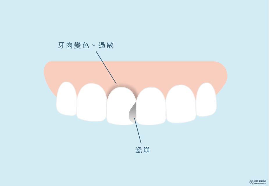 金屬牙套瓷崩且牙齦漸層變色