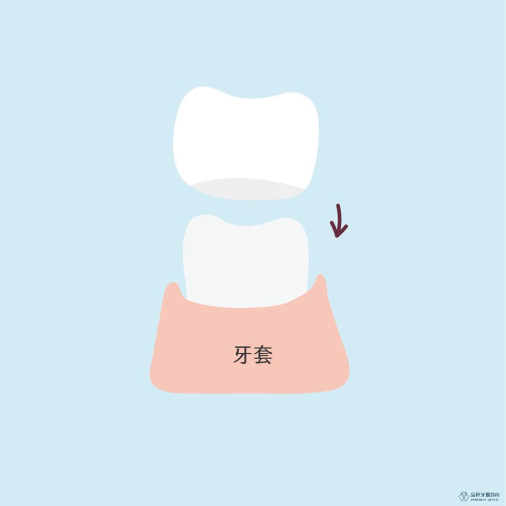 竹北品粹牙醫牙套