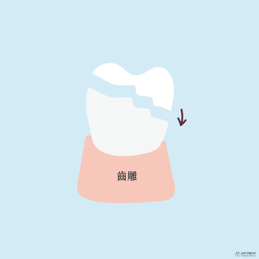 竹北品粹牙醫齒雕