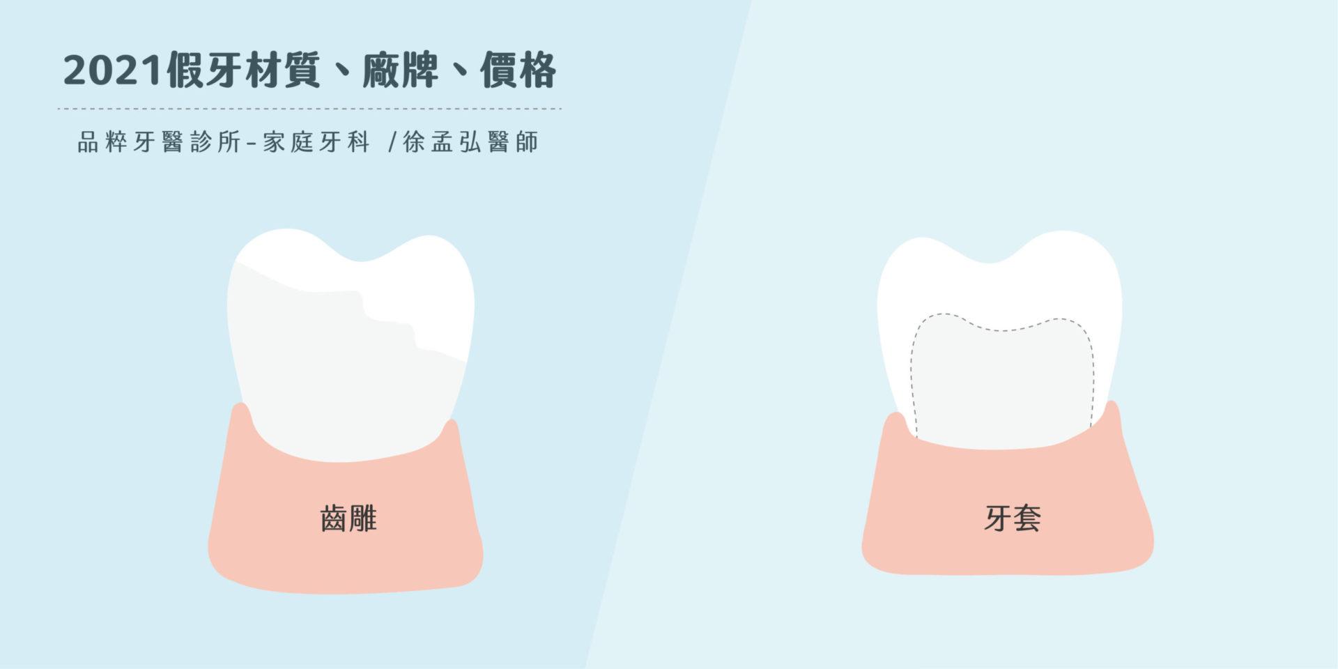 竹北品粹牙醫徐孟弘醫師的齒雕