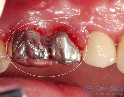 品粹牙醫全金屬後牙牙冠側面照