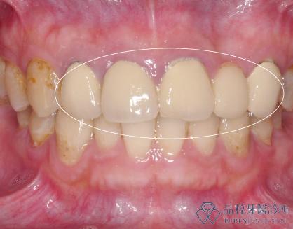品粹牙醫金屬燒陶瓷前牙牙冠正面照