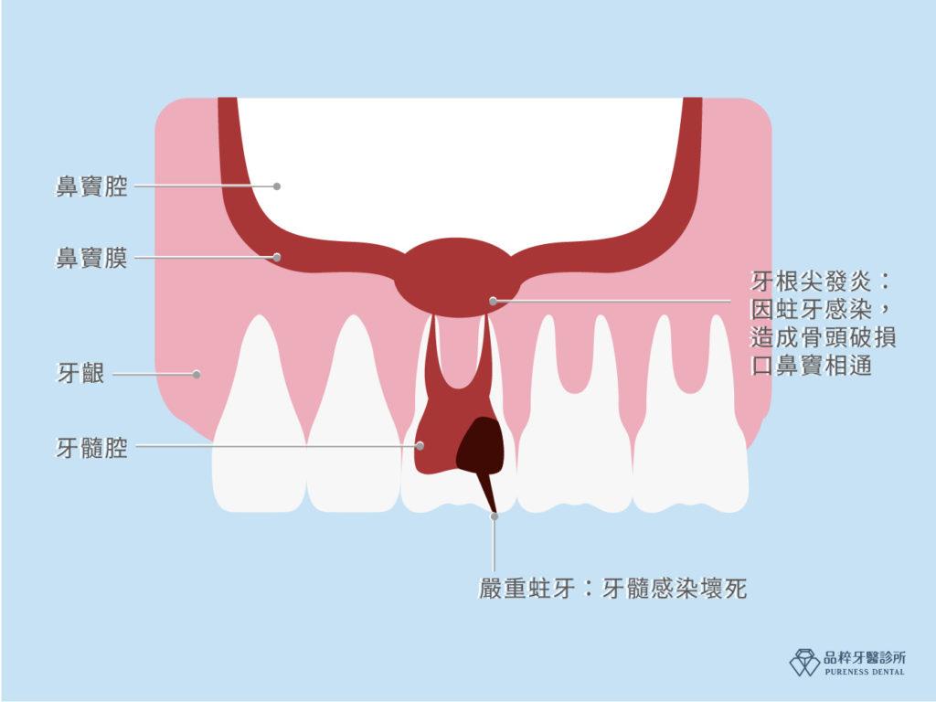 嚴重蛀牙感染鼻竇腔剖面圖