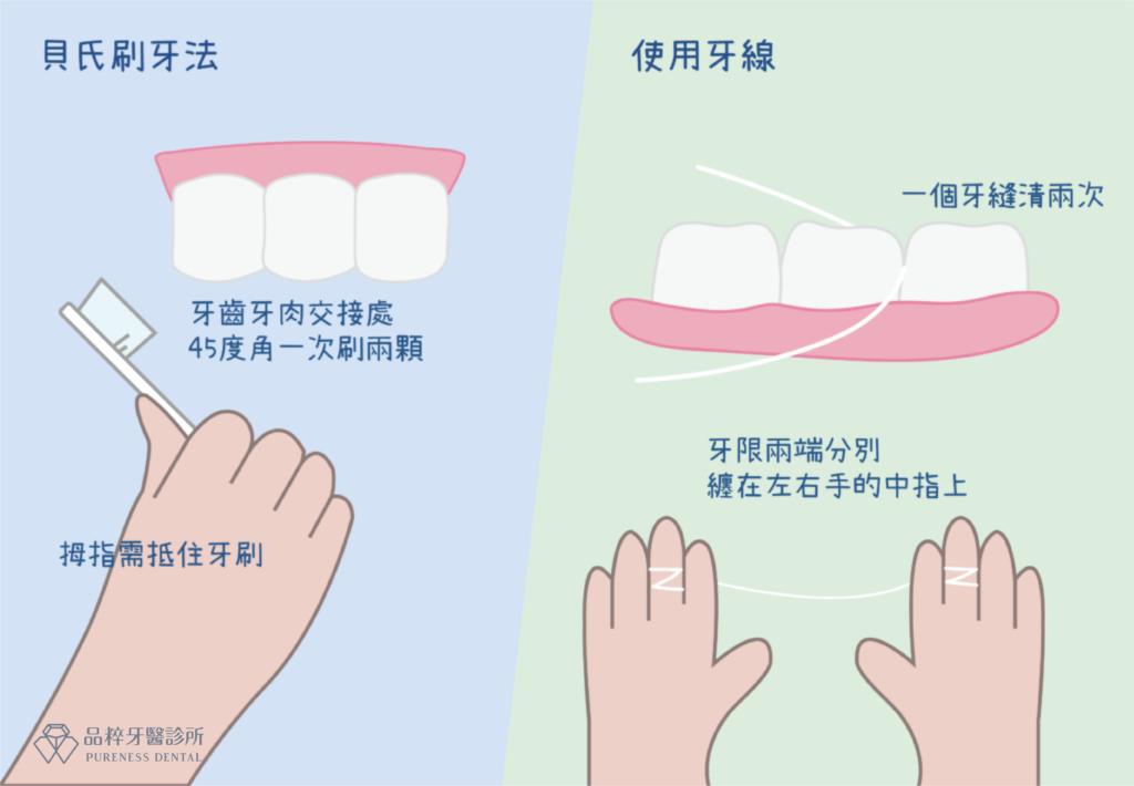 竹北品粹牙醫教你用牙刷牙線