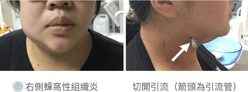 蜂窩性組織炎牙科醫師從脖子處切開引流