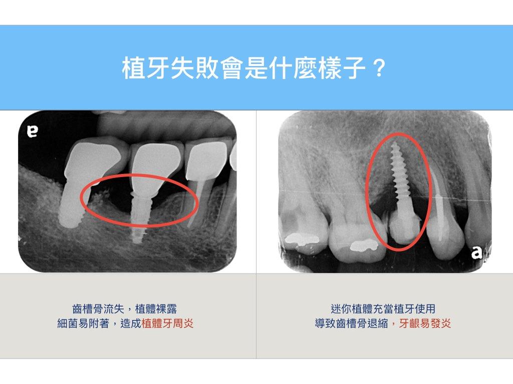 植牙失敗會是什麼樣子?